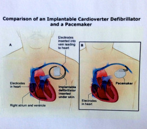 Picture Of Implantable Cardiac Devices